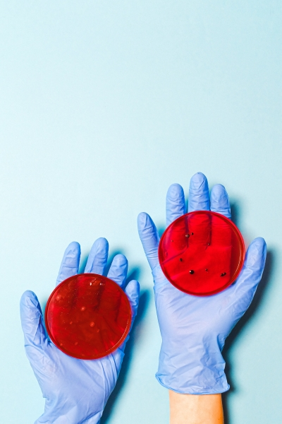 scientist holding petri dishes